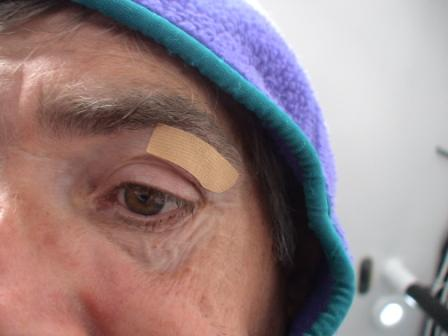 Cut patched up on Rich Wilson's eyebrow